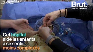 Dans cet hôpital, les poupées ont des cicatrices pour aider les enfants à se sentir moins complexés