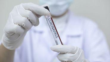 Tests sérologiques : uniquement pour des diagnostics, les groupes à risques et la recherche !
