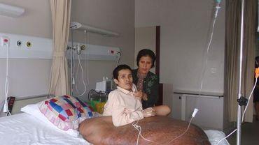un homme  de 31 ans opéré d'une tumeur de 90 kilos