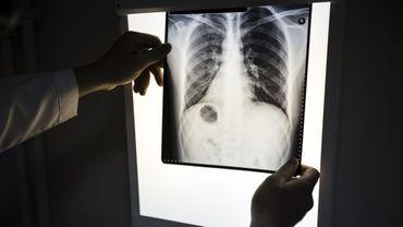 Cancer du poumon: des chercheurs ont identifié deux voies distinctes de propagation.