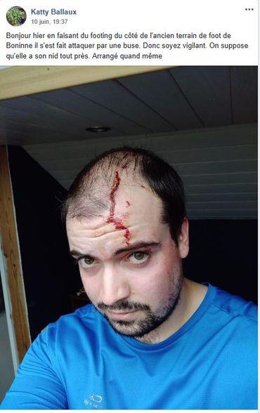 Sur un post Facebook, une photo témoigne de l'attaque d'une buse sur un homme qui faisait son jogging