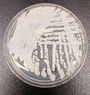Une souche de Candida auris cultivée dans une boîte de Petri dans un laboratoire aux États-Unis.