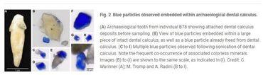 Les images scientifiques de l'analyse des dents de la copiste du XIe siècle