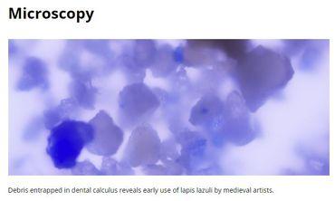 Vue microscopique du bleu trouvé dans le tartre dentaire par l'équipe de Christina Warinner