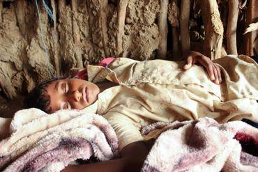 Au Yemen, une épidémie de dengue vient s'ajouter à une épidémie de choléra.