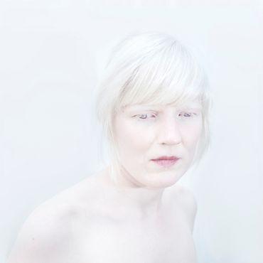 Une des photos du reportage sur un frère et une sœur atteint d'albinisme.