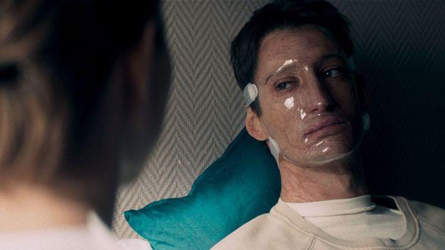 Franck dans la peau d'un pompier grièvement blessé