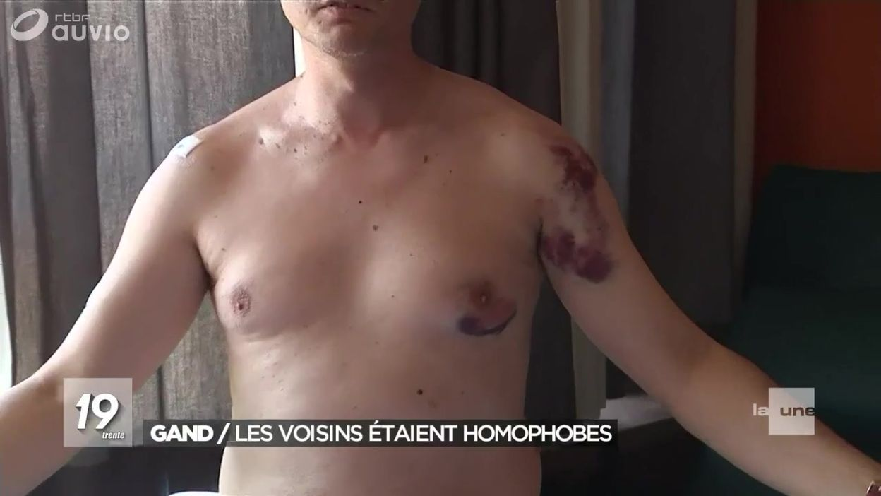 Agression homophobe à Gand