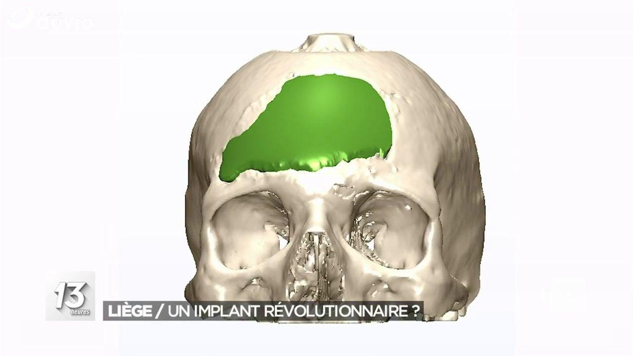 Avancées dans le domaine de la reconstruction faciale